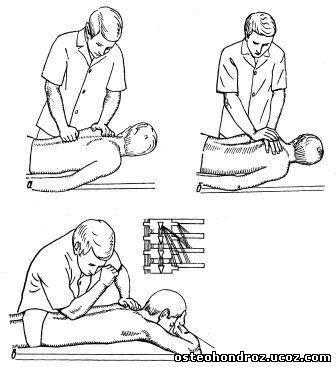 Приемы классического массажа поэтапно